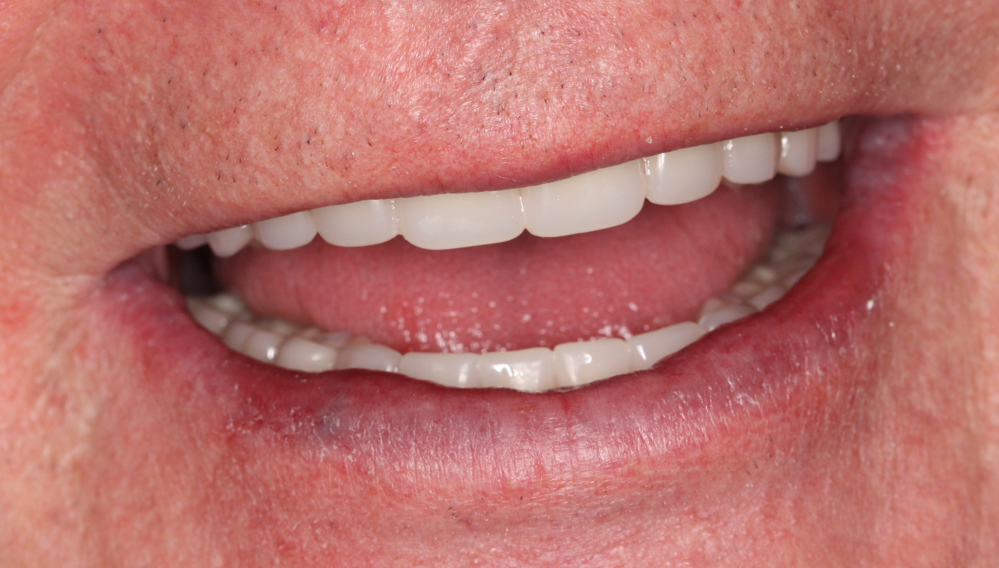 Bad dentures pictures